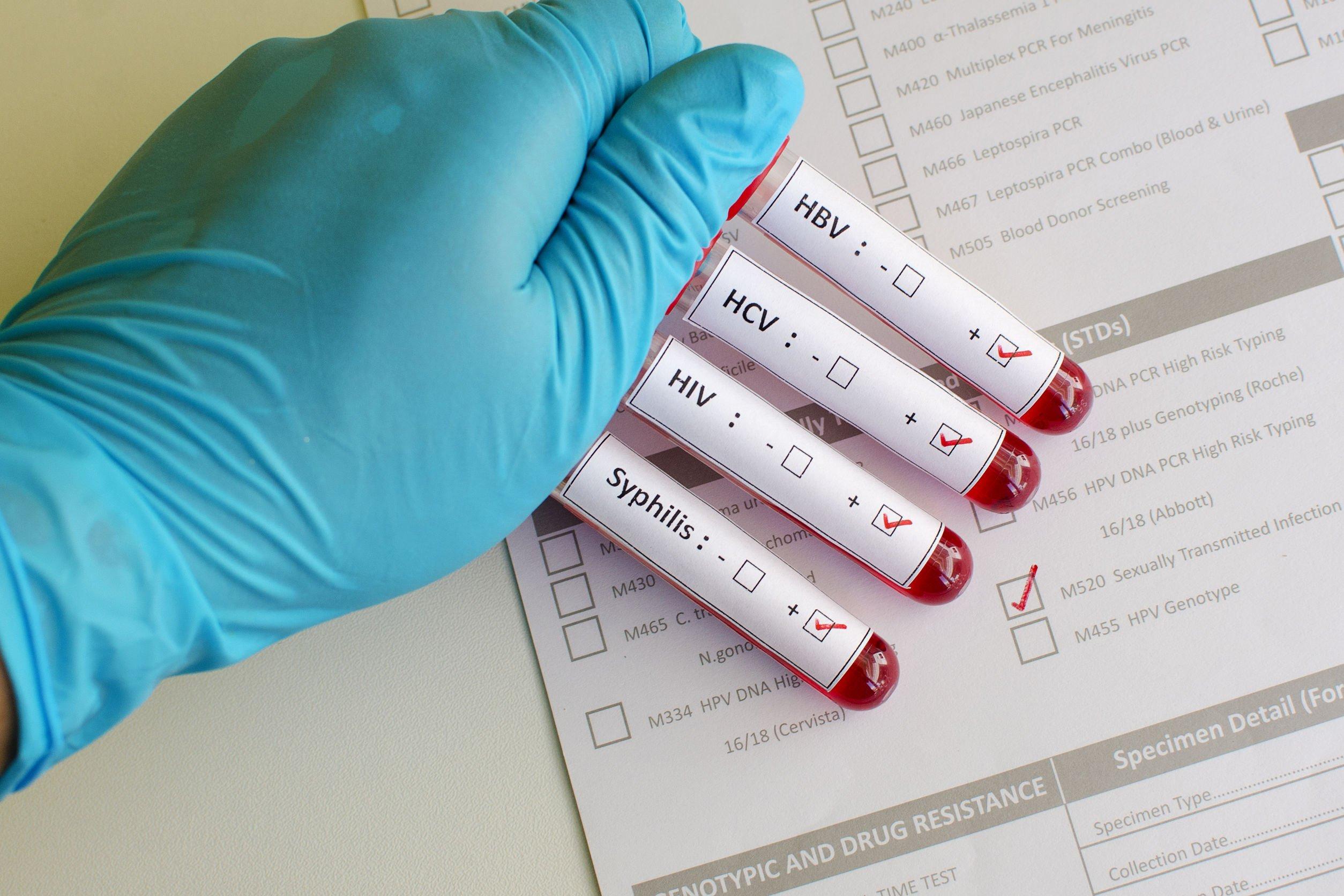signs of syphilis in men VA
